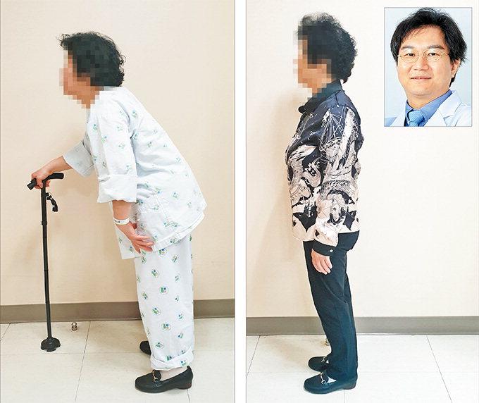 우리들병원, 재수술 어려운 척추질환도 최소절개로 치료