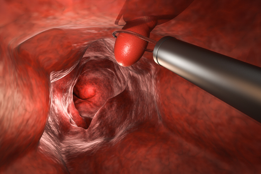 대장암---내시경 검사로 조기 발견하면 90%이상 완치