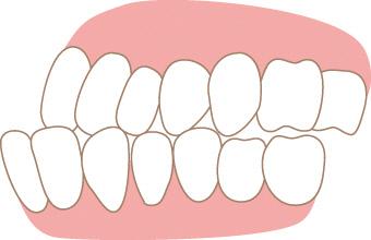 이갈이 그냥 두면 치아 부러질 수도...증상과 치료법은?