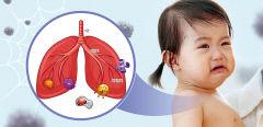 기침하고 힘들게 숨쉬는 아이…급성 세기관지염 의심
