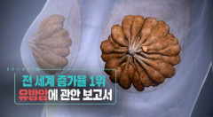 '생로병사의 비밀' … 폐경 후 비만, 유방암의 위험 요인 될 수도