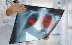 방사선으로 치료하는 폐암…