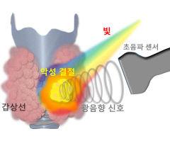 광음향 영상법 도입...'갑상선 암' 인공지능으로 진단한다