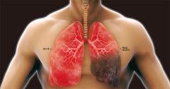 폐가 굳어가는 폐섬유화증…