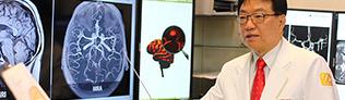 뇌 MRI·MRA…``뇌 질환, MRI·MRA 함께 검사해야 조기 발견``