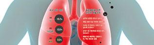 지속되는 기침·발열·가래…치료 늦으면 `폐렴 위험`